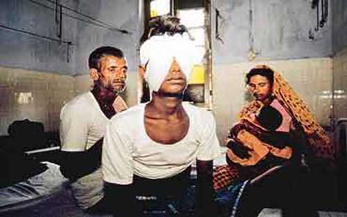 incidents-indians-shame-bhagalpur