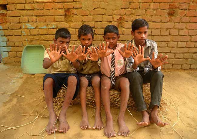 family-hands-and-feet-are-12-12-fingers 12 उंगलियां