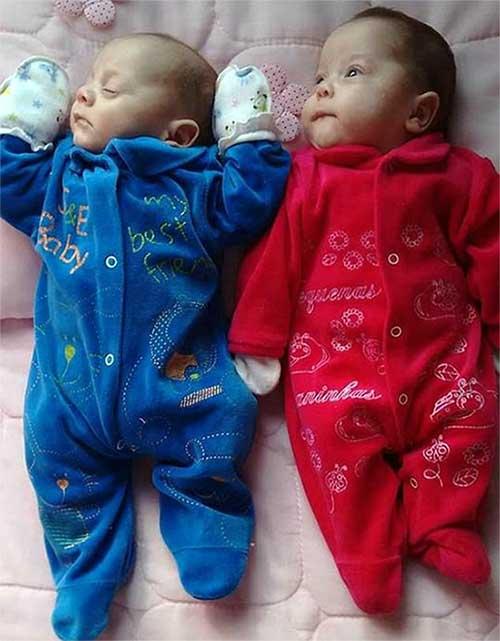 जुड़वाँ बच्चियां